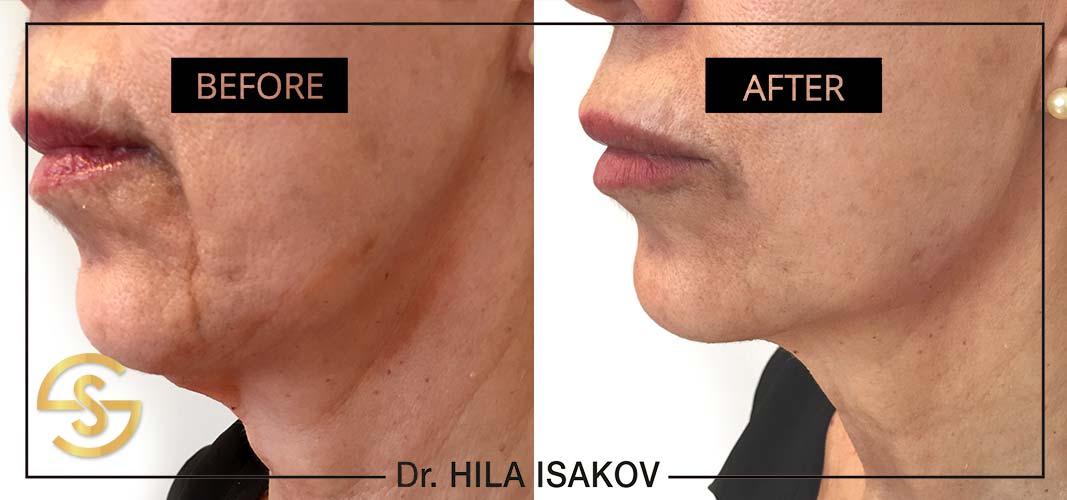 face lift_Neck_No surgery